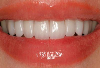 белые зубы после процедуры