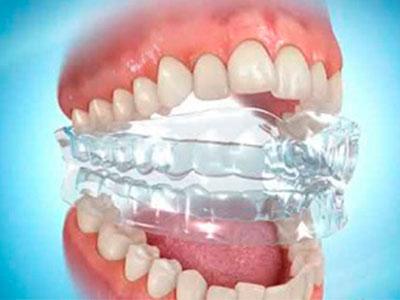 изображение стоматологической капы